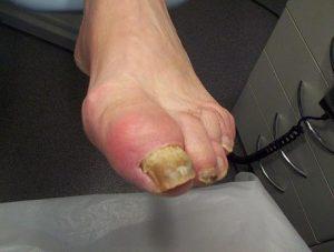 Reumatische voet